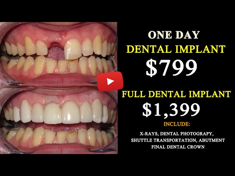 √ All on 6 Dental Implant Cost in Tijuana, Mexico Save Up 75%