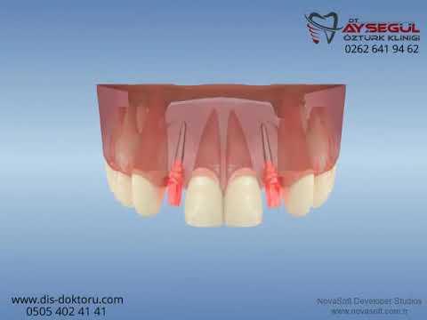 Ortodontik tedavi sonrası implant uygulanması