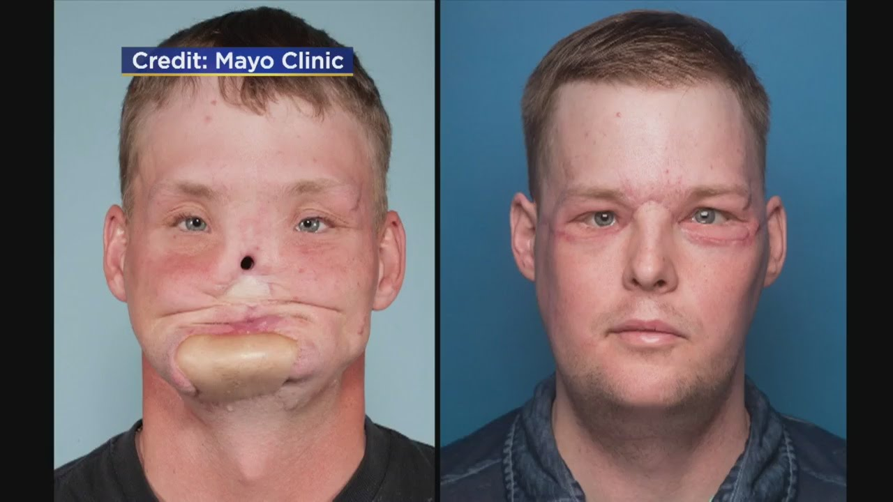 Watch World's first full face transplant video