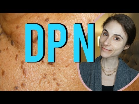 Dermatosis papulosa nigra (DPN) removal: Q&A with dermatologist Dr Dray