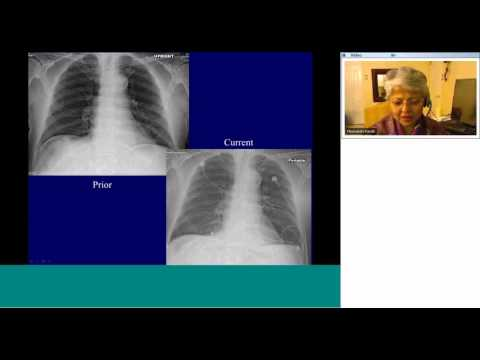 Radiology teaching on Topic:'Basic chest radiography + ICU RADIOLOGY' by Dr Mini Pandit,MD,MBA thumbnail