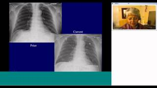 Radiology teaching on Topic:'Basic chest radiography + ICU RADIOLOGY' by Dr Mini Pandit,MD,MBA
