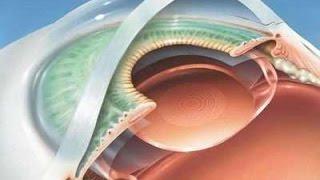 Экстракапсулярная экстракция катаракты (ЭЭК) - видео операции(Операция по удалению помутневшего хрусталика глаза (катаракты) с помощью метода экстракапсулярной экстрак..., 2016-03-23T15:28:52.000Z)