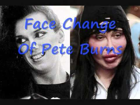 Plastic Surgery Singer Pete Burns Vs Octomom Youtube