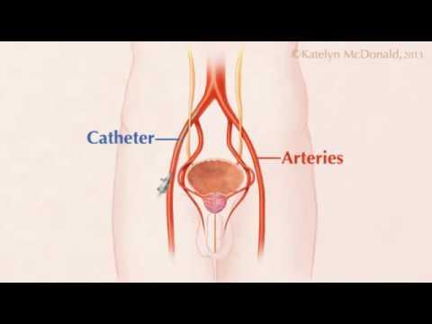 embolización de la próstata