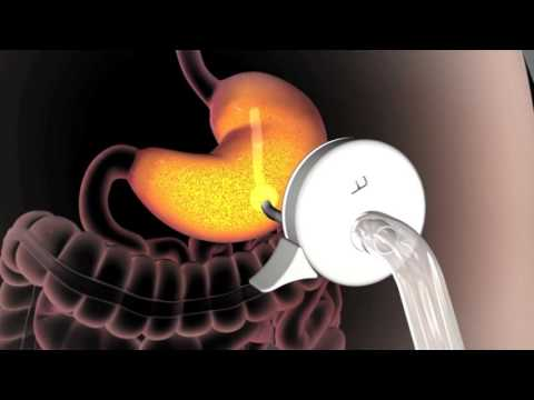 AspireAssist How It Works Weight Loss Stomach Pump AspireAssist to Combat Obesity