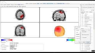 EEG Intro to NeuroNavigator Normative Database