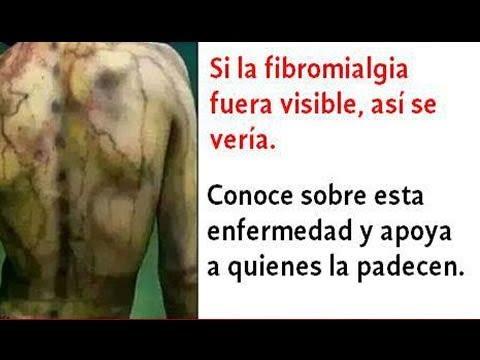 los-síntomas-de-la-fibromialgia-que-no-debes-dejar-pasar---qué-es-la-fibromialgia?-rc-147