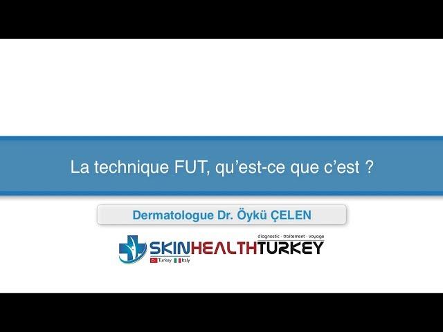 Greffe de cheveux Turquie – La technique FUT, qu'est-ce que c'est? - Dr. Öykü Çelen