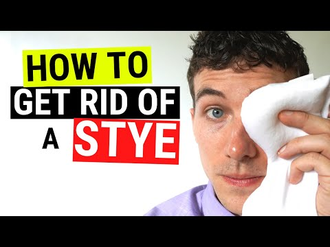 How to Get Rid of a Stye FAST Chalazion VS Stye Treatment