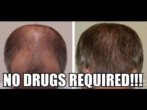 How to Reverse Hair Loss Naturally #294