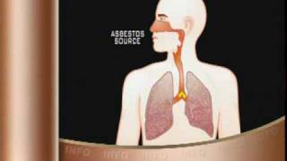 New York Mesothelioma Lawyers | Asbestos Related Diseases