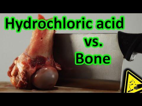 Hydrochloric Acid vs. Bone total decomposition 🍖