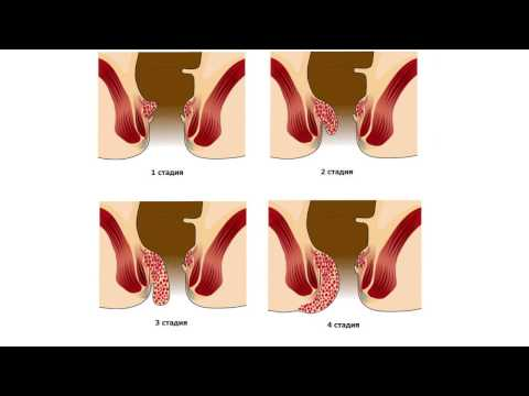 Геморрой - лечение быстро и без боли!