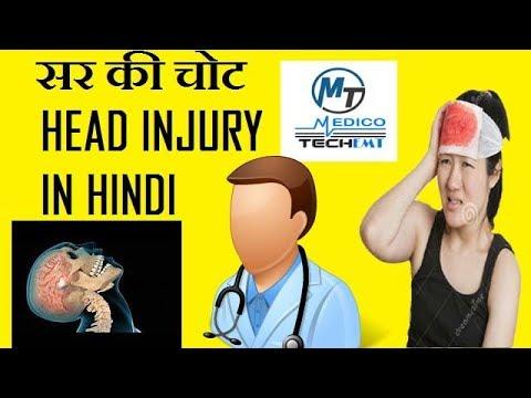head injury in hindi सर की चोट