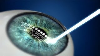 What Are Different Lasik Types