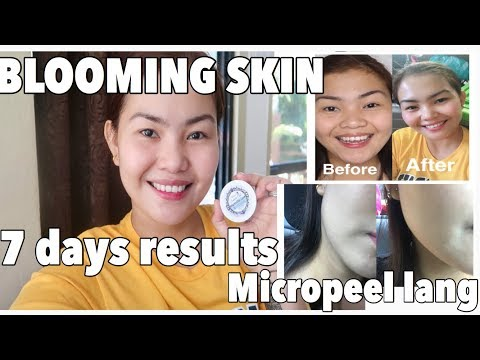 BLOOMING SKIN | AFTER 7 days LUMINOUS SKIN REJUVENATING | MICRO PEEL