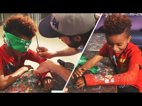 Jones and Company - Artists Decorate Casts and Prosthetic Legs for Children and it is Awesome!