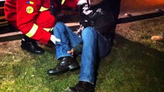 Jandarmii au batut un barbat pana i-au rupt piciorul