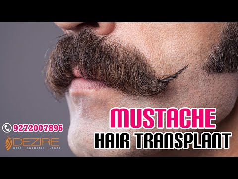 Mustache (Facial) Hair Transplant at Dezire clinic in Pune, India