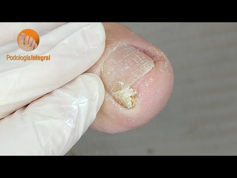 Bye bye nail discomfort! Welcome total cleaning! [Podología Integral]