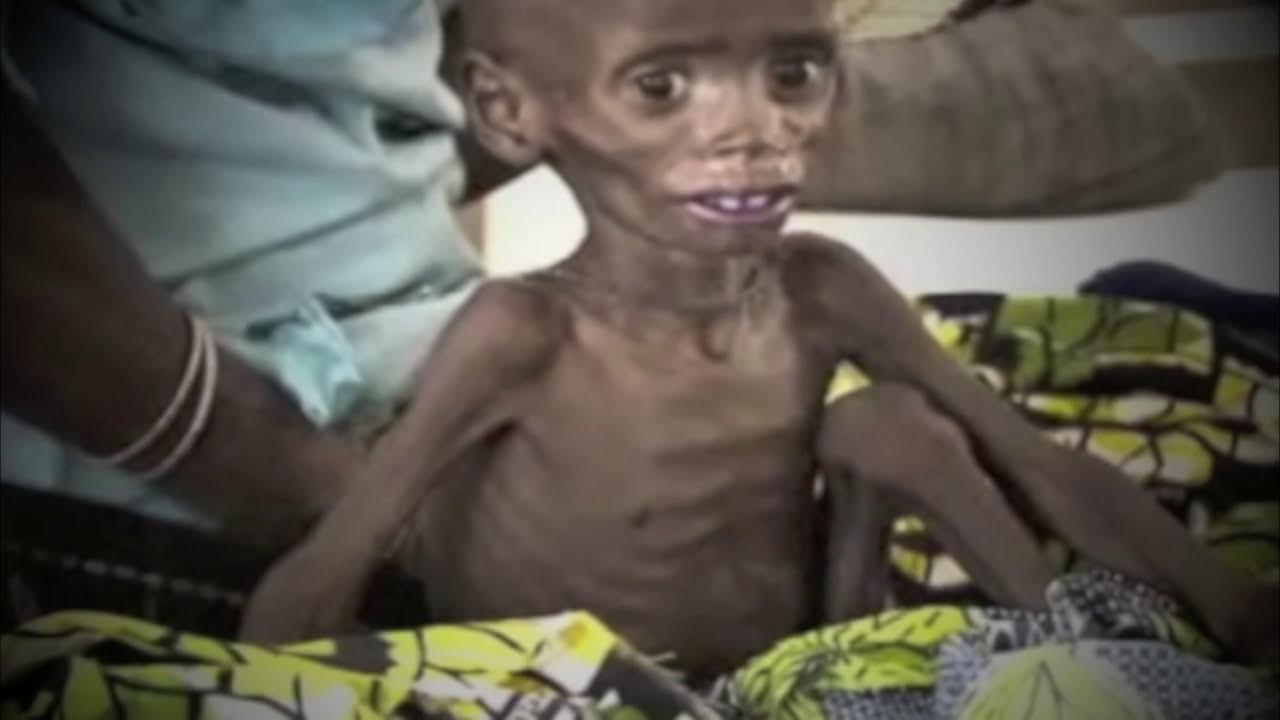 Starving Children Must See Jlp Youtube