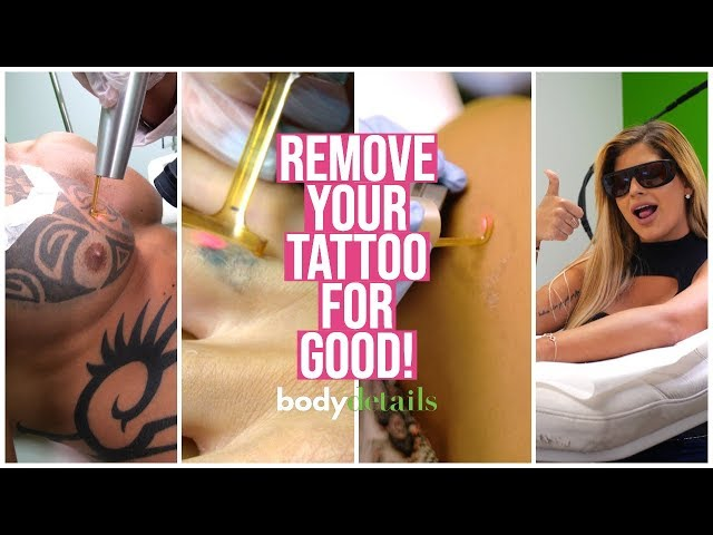Is Laser Tattoo Removal Right For You? | Body Details