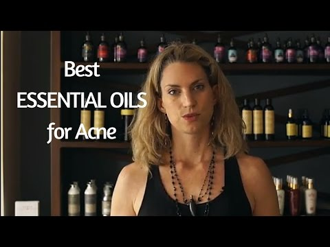 best-essential-oils-for-acne