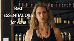 hqdefault - What Essential Oils Are Good For Acne