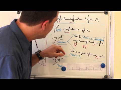 Easy Heart Blocks.mpg