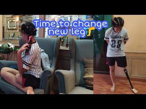 Amputee Girl With Chubby Stump Tries On New Prosthetic Leg |Amputee woman |Neue Prothese |ลองขาเทียม from YouTube · Duration:  4 minutes 25 seconds