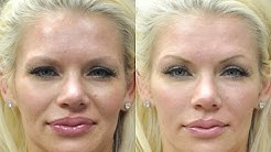 Playboy Playmate, Model, & Actress Buffy Tyler - Natural Liquid Non Surgical Mini Facelift