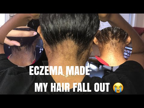 BAD Scalp Eczema & Nape Breakage | Pictures & My Natural Routine