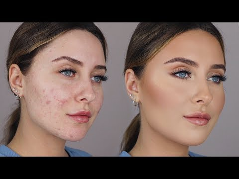 HOW TO COVER ACNE SCARS *easy & non cakey*