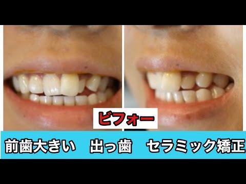 前歯の不揃いで笑う時におもいきり歯を出して笑えなかったことが一番の悩みでした