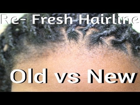 How To | Fix Your Hairline/Edges | Box Braids or Twists