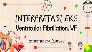 This video is about Non sustained Ventricular Tachycardia (NSVT). If you would like to contact me yo.