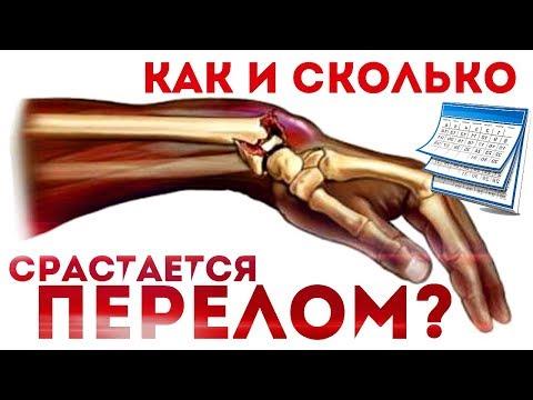 Сколько срастаются кости после перелома? Как именно срастаются кости после перелома?