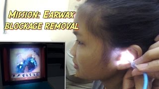 Mission: Earwax Blockage Removal