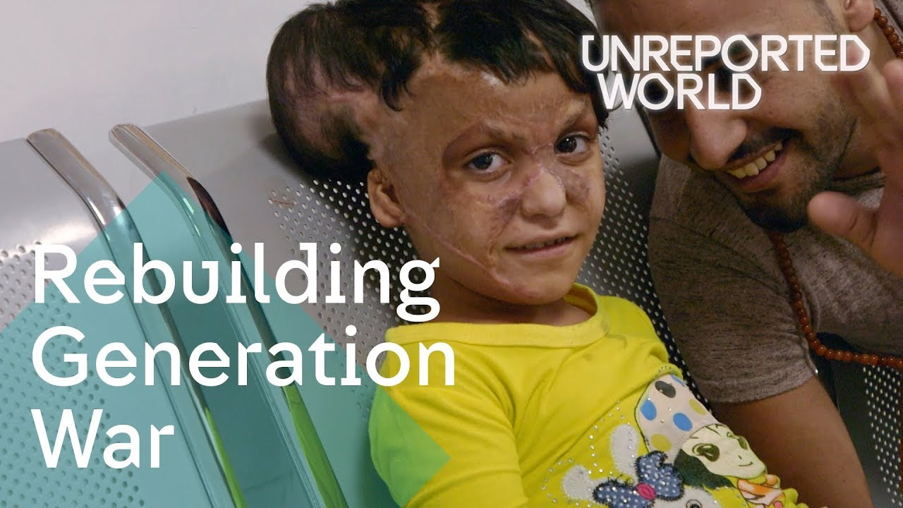 Inside the hospital helping the war torn generation | Unreported World