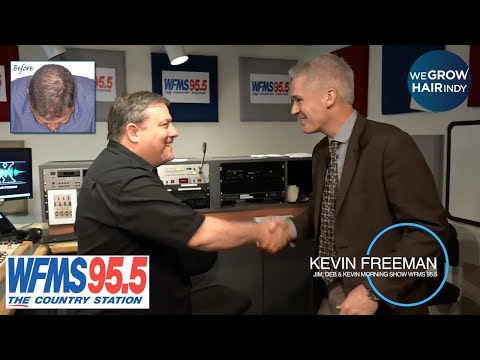 latest-hair-transplant-vip-|-kevin-freeman-from-95.5-wfms