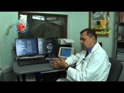 Расшифровка МРТ, КТ, ПЭТ, УЗИ, рентгеновских снимков