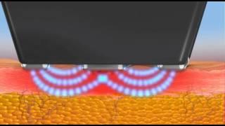 Forma Animation Thumbnail