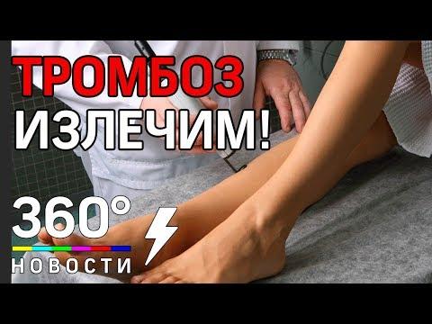 Российские ученые победили тромбоз!