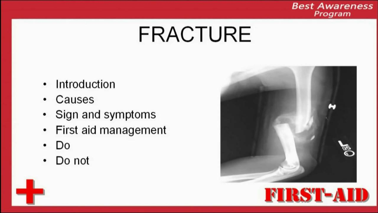 Delightful Introduction Of Fracture , What Is Fracture?, Definition Of Fracture