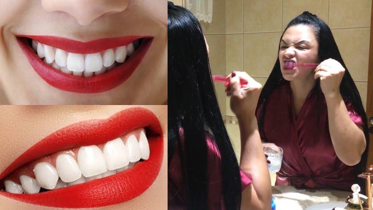 Como Clareei Os Dentes Na Hora Eliminei Tartaros E Gengivite Em 3