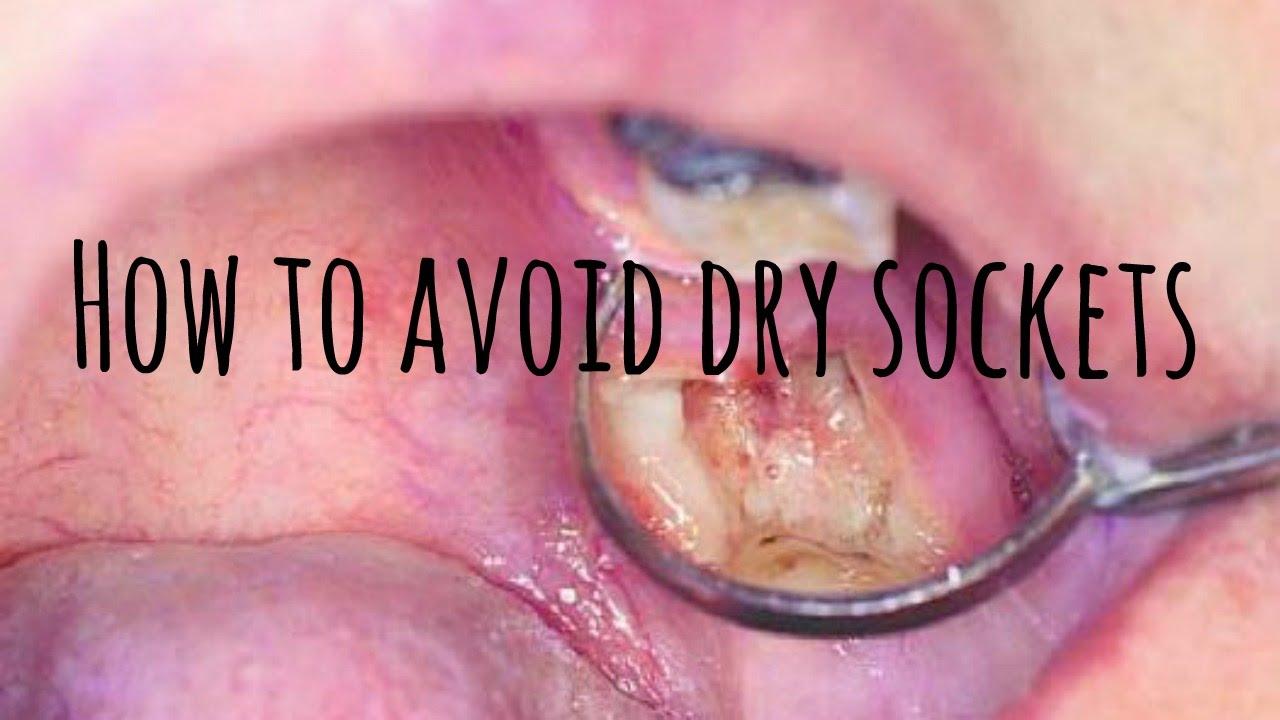 How To Avoid Dry Sockets Youtube