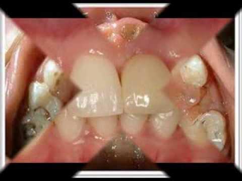 โรคฟันผุในเด็กปฐมวัย
