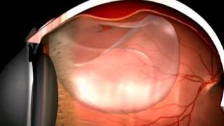 Il distacco di retina - evrs