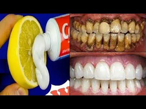 Magical Teeth Whitening Remedy, Get whiten Teeth at home in one week